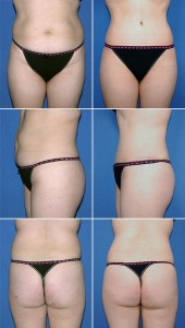 abdominoplasty-hip-lipo-003-webset