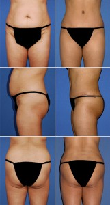 abdominoplasty-hip-lipo-004-webset