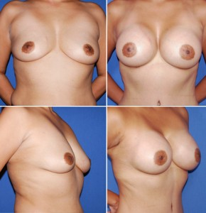 breast-enlargement-08-quad