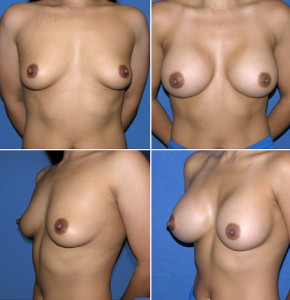 breast-enlargement-11-quad