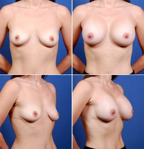 Houston Breast Augmentation 13