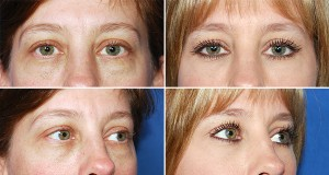 Houston Eye Surgery