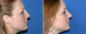 Houston Rhinoplasty 5