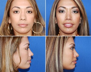 Houston Rhinoplasty 1