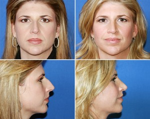 Clear Lake Rhinoplasty 4