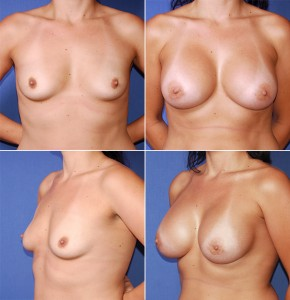 Clear Lake Breast Augmentation