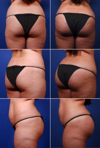 Clear Lake Brazilian Buttocks Fat Transfer